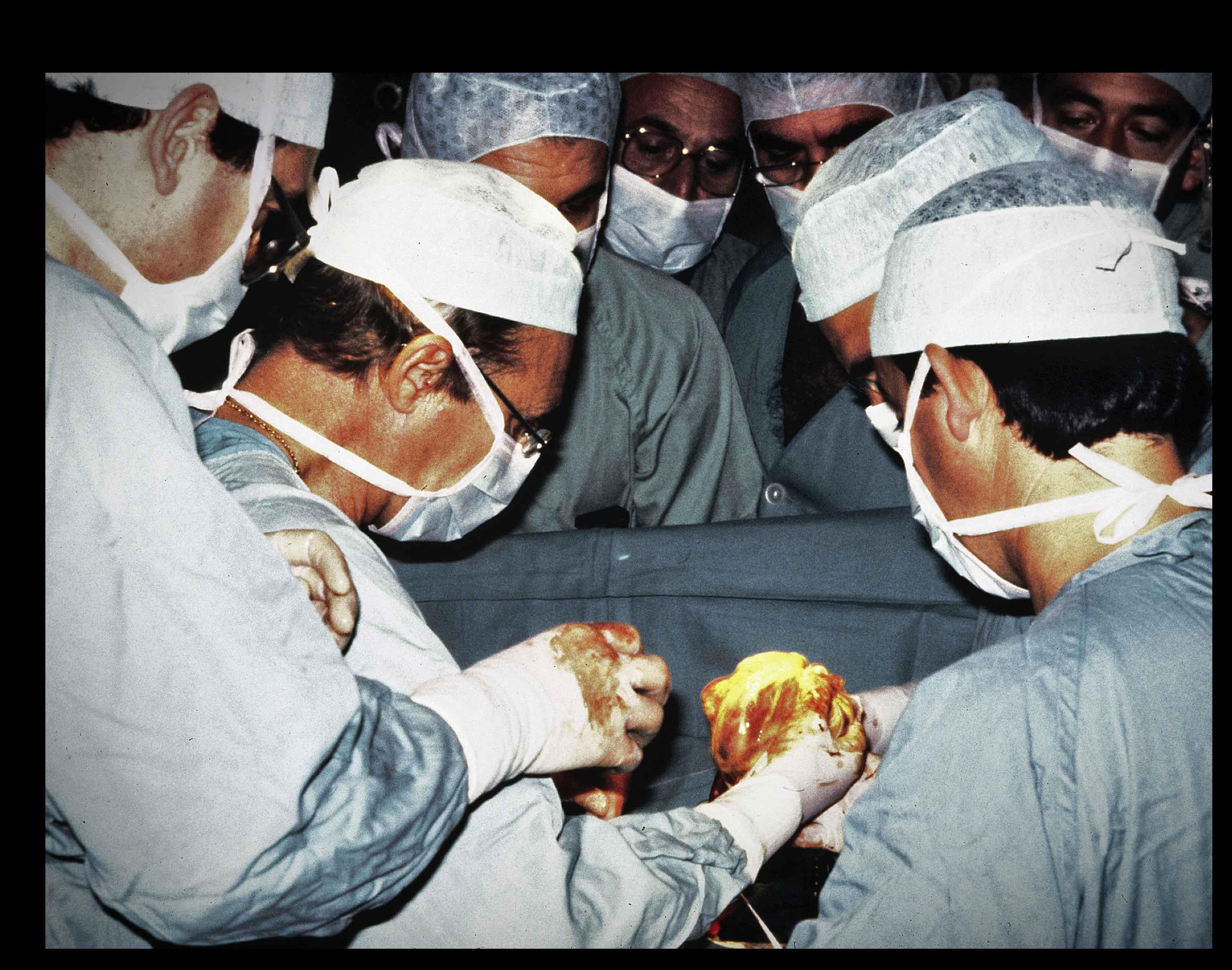 Imagen del primer trasplante de corazón realizado en el Hospital La Fe de Valencia